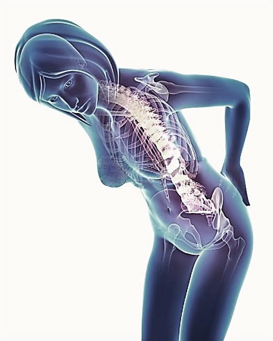 dolor de cuello de la inclinación pélvica anterior